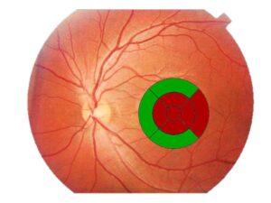 Espesor de la retina