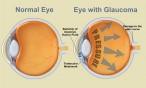 Glaucoma, qué es y cuáles son sus factores de riesgo